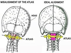 Misalignment as in Torticollis